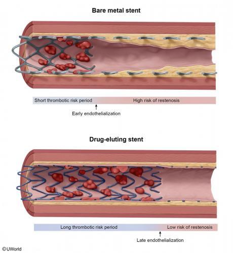 Bare Metal vs. Drug Eluting Stent