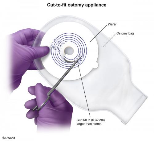 Cut to Fit Ostomy Appliance