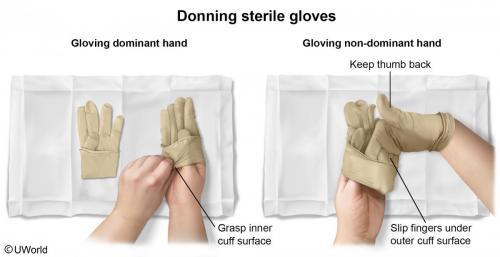 Donning Sterile Gloves