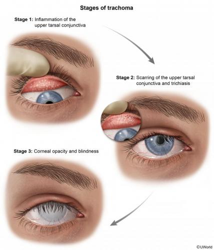 Stages of Trachoma
