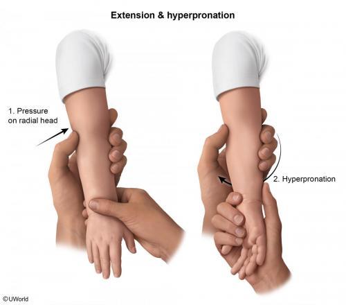 Treatment of Radial Head Subluxation - Hyperpronate